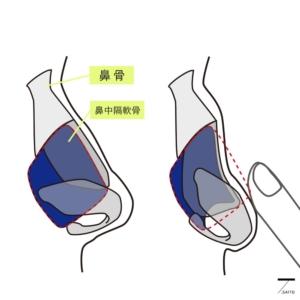 鞍鼻変形 徒手検査 イメージ図