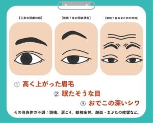 眼瞼下垂 症状 イラスト説明