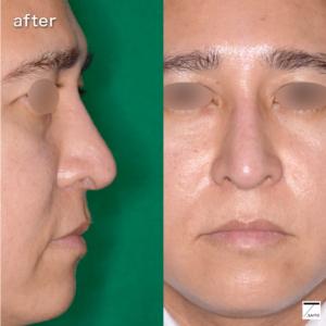 鼻 シリコンプロテーゼ トラブル 入れ替え 術後