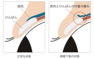 眼瞼下垂 内部変化 イラスト説明
