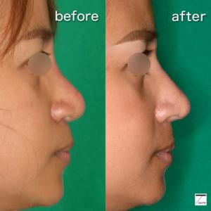 団子鼻治療 術前後 横