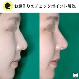 ハンプ 鼻筋 治療 術前後写真